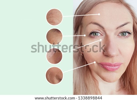 woman wrinkles before and after collage procedures #1338898844