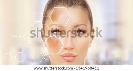 Dark spots, freckles,hyperpigmentation(melasma or chloasma) #1341968411