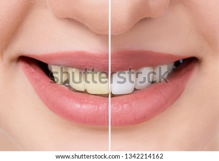 Close up beautiful teeth before and after whitening or bleaching, health dental care beauty clinic, teeth whitening concept #1342214162
