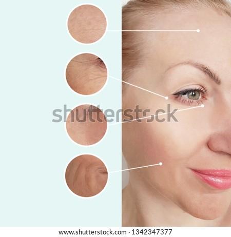 woman wrinkles   after  procedures #1342347377
