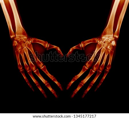 X-ray picture - Human palms folded in a heart shape