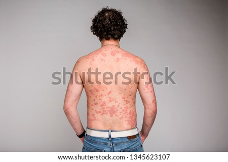 Dermatological skin disease, psoriasis, more pronounced on the elbows,Psoriasis skin. Psoriasis is an autoimmune disease that affects the skin cause skin inflammation red and scaly #1345623107