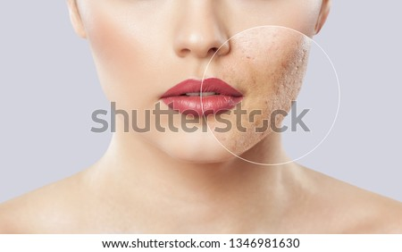 A young girl with a problem skin. Photo before and after treatment for acne. Cosmetology and skin care. Royalty-Free Stock Photo #1346981630