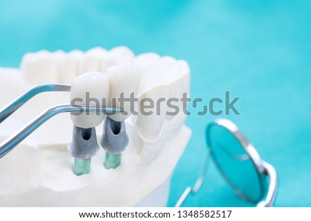 Couse up Implan model tooth support fix bridge implan and crown. #1348582517