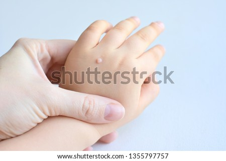 The doctor holds a small hand of a child affected with warts on little fingers and back of the hand. Papillomavirus in a child's hand and fingers. Pediatric dermatology. Skin diseases #1355797757