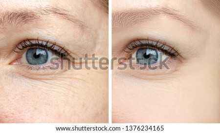 Woman face, eye wrinkles before and after treatment - the result of rejuvenating cosmetological procedures of biorevitalization, face lifting and pigment spots removal. Royalty-Free Stock Photo #1376234165