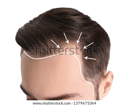 Young man with hair loss problem on white background, closeup #1379671064