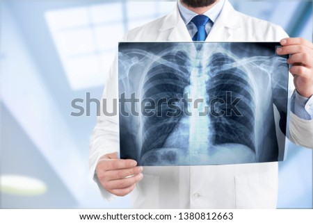 Young man doctor holding x-ray #1380812663