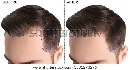 Young man before and after hair loss treatment against white background, closeup #1381278275