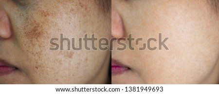 Image before and after spot melasma pigmentation facial treatment on face asian woman. Problem skincare and health concept.  #1381949693