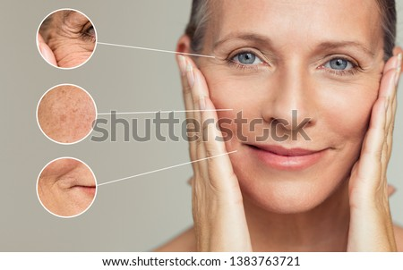 Close ups of wrinkles and skin imperfection on the face of a senior woman. Portrait of beautiful senior woman touching her perfect skin after a beauty treatment. Aging process concept. #1383763721
