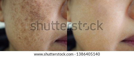 Image before and after spot melasma pigmentation facial treatment on face asian woman. Problem skincare and health concept.  Royalty-Free Stock Photo #1386405140