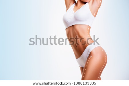 Sensual female body, cosmetic surgery and skin liposuction. #1388133305
