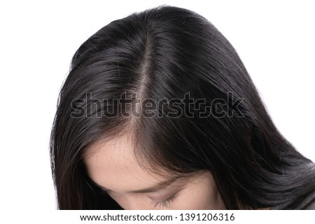 Young Asian women worry about problem hair loss,head bald,dandruff.hair loss problem and Hair treatment concept #1391206316