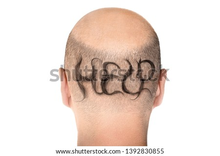 Concept of hair loss. Back view of balding male head isolated on white background. Detail showed alopecia #1392830855