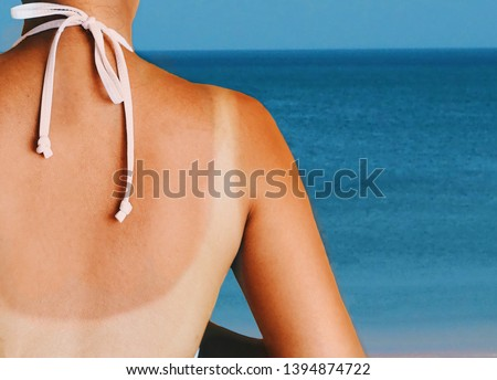 Asian woman back with red skin sunburn after sunbathing on the beach. #1394874722