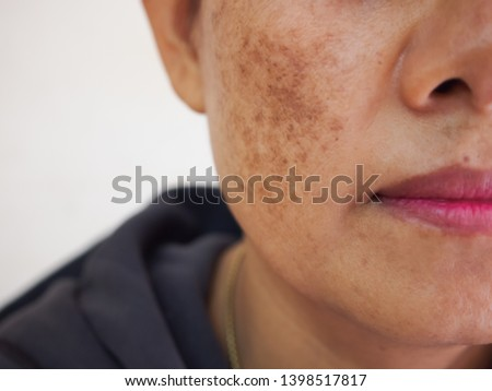 Problem skincare and health concept. Wrinkles, melasma, Dark spots, freckles, dry skin on face middle age woman .  Royalty-Free Stock Photo #1398517817