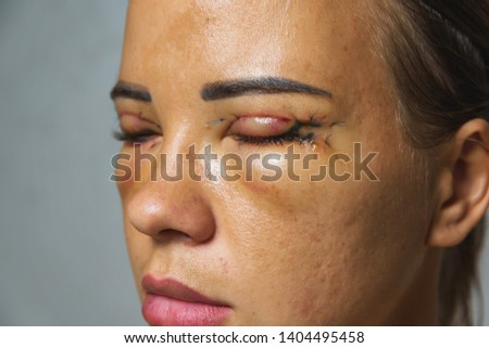 Woman after plastic surgery on the eyes. Stitches on the eyelids after blepharoplasty. The condition of the face immediately after the removal of bags under the eyes and eye hernias. #1404495458