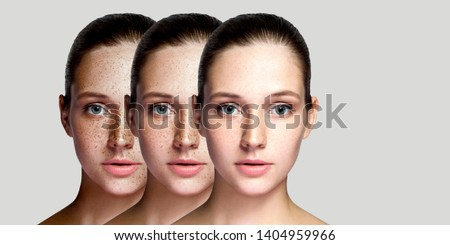 Step by step concept of healing and removing freckles. Closeup portrait of beautiful brunette woman after laser treatment on face looking at camera. indoor studio shot, isolated on gray background. #1404959966