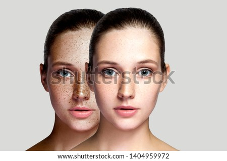 Closeup before and after portrait of beautiful brunette woman after laser treatment removing freckles on face looking at camera. makeup or cosmetology. indoor studio shot, isolated on gray background. Royalty-Free Stock Photo #1404959972