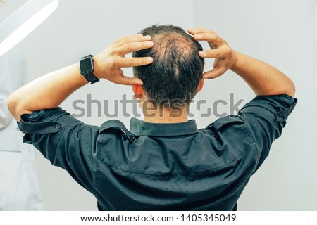 A young man with a bald spot in the office of a trichologist cosmetologist. Bald on a man's head. Male pattern baldness. Fighting hair loss in men. #1405345049