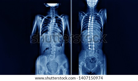 whole spine x-ray showing a patient with adolescent idiopathic scoliosis or AIS before and after correction deformity surgery. #1407150974