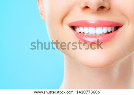 Beautiful woman smile, healthy white teeth. dentistry concept #1410773606