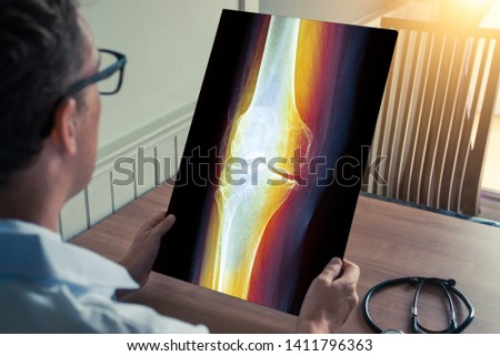 Doctor holding a x-ray of leg with pain in medical office #1411796363