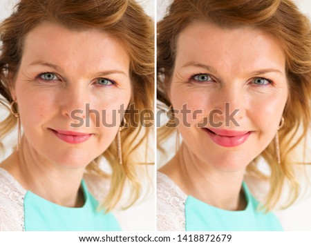 Woman's portrait before and after bigger lips enhancement procedure