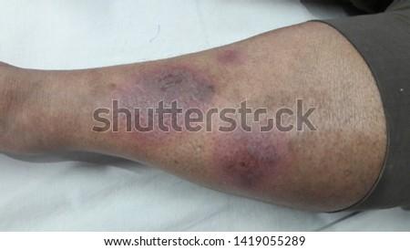 Erythema Nodosum: reddish, painful lumps in legs #1419055289