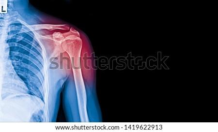 X-ray image of shoulder pain, shoulder ligament tendinitis, shoulder muscle strain. #1419622913