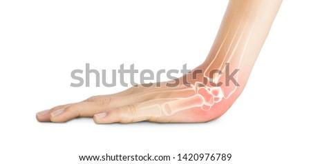 wrist bones injury white background wrist pain #1420976789