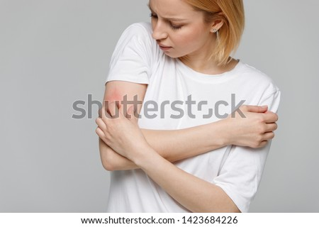 Close up of young woman scratching the itch on her hand, isolated on grey background. Dry skin, animal/food allergy, dermatitis, insect bites, irritation concept.  #1423684226