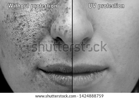 Ultraviolet photograph of the face exposed to the sun's rays wit #1424888759