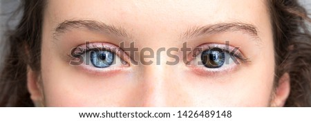 Human heterochromia on eyes of girl, blue one and brown one #1426489148