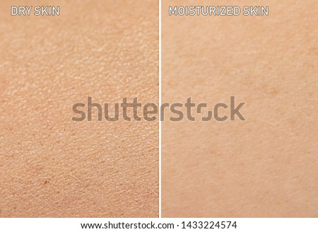 An extreme close up view of human skin, before and after moisturizer is applied. One showing dry skin, and the other showing healthy moisturized skin. #1433224574