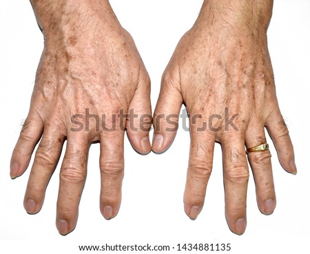 Age spots on hands of Asian elder man. They are brown, gray, or black spots and also called liver spots, senile lentigo, solar lentigines, or sun spots. Isolated image with white background. #1434881135
