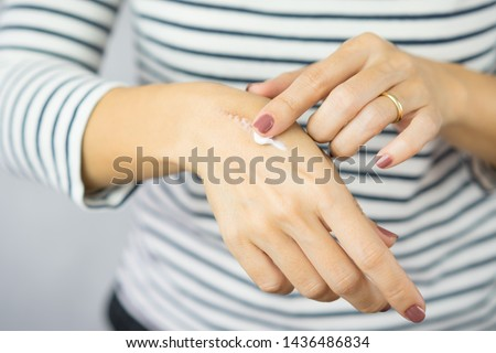 A woman applying scars removal cream to heal the first degree - heat burn wound on her hand. Healing, Removal, treatment, Hot oil burn, Vitamin E, Scars care, Skin care products, Medical cream, Repair #1436486834