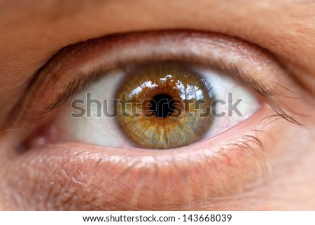 Conjunctivitis. The inflamed eye of the tired man close up. Macro. #143668039
