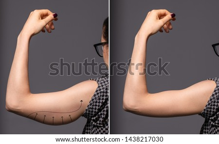 A before and after view of a successful brachioplasty procedure. An untoned arm is seen on the left before plastic surgery, and a toned arm is seen on the right after the operation. Royalty-Free Stock Photo #1438217030