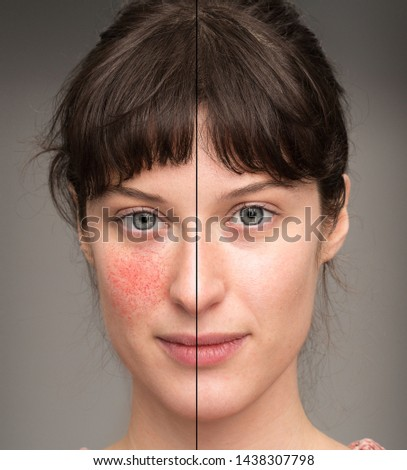 A before and after view of a beautiful young Caucasian girl suffering with rosacea. Portrait view showing results of successful laser surgery. #1438307798