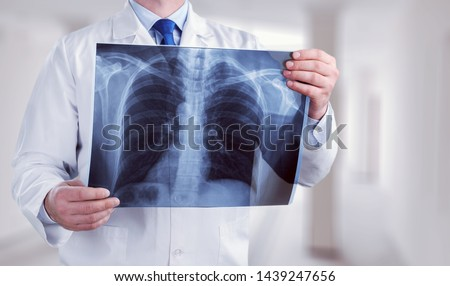 Young male doctor examining x-ray on white #1439247656