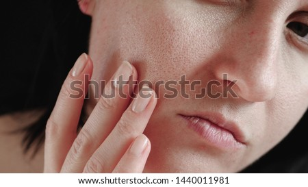 Skin with enlarged pores close-up. The woman touches the skin of her face, examining it. #1440011981
