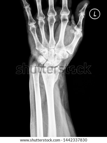 X-ray image of wrist joint and human hand                                #1442337830
