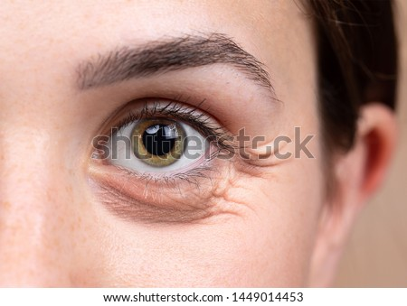 A close up view on the eye of a thirty something Caucasian lady with brownish green eyes. A puffy dark eye bag is seen beneath the eye. Common symptom of sleep deprivation. #1449014453