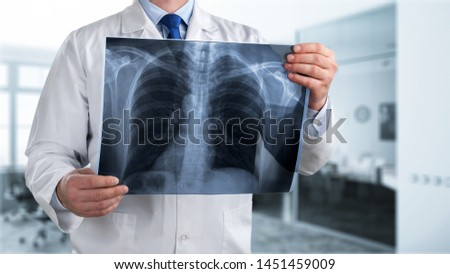 Doctor looking chest x-ray film in hospital. #1451459009
