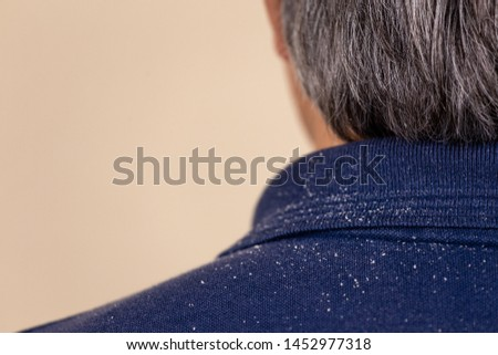 Close-up view of a man who has a lot of dandruff from his hair on his shirt and shoulders. Fatty Dandruff Royalty-Free Stock Photo #1452977318