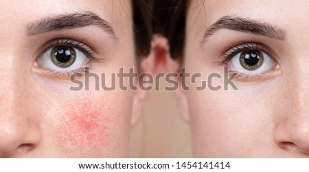 A young Caucasian girl shows the before and after results of intensive light surgery to remove the symptoms of rosacea. A noticeable reduction in cheek redness is seen. #1454141414