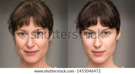 Woman before and after a rejuvenation treatment. Wrinkles, crow' Royalty-Free Stock Photo #1455046472