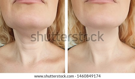 woman wrinkles   after treatment lifting  Royalty-Free Stock Photo #1460849174